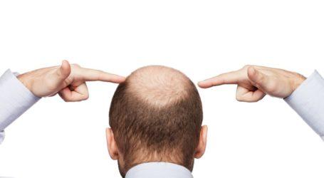 ¿Qué es la alopecia y qué la causa? Según Capilea Monterrey